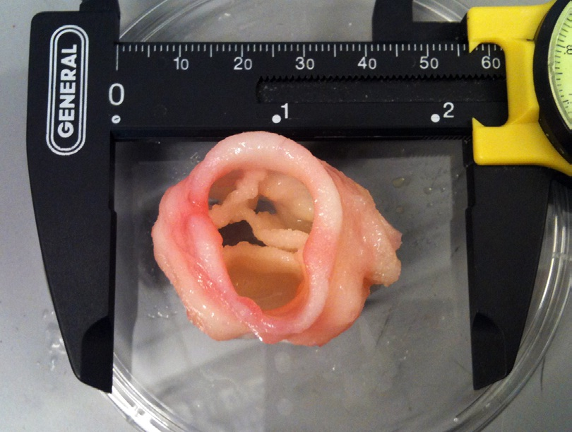 3-D printed artificial heart valve